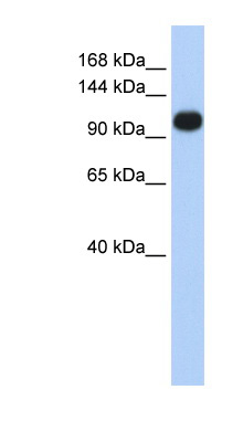 ATP2A3 / SERCA3 antibody Western blot of Jurkat lysate. This image was taken for the unconjugated form of this product. Other forms have not been tested.