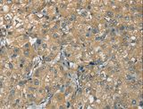 Immunohistochemistry of Human liver cancer using ATP2A3 Polyclonal Antibody at dilution of 1:30.