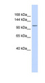 ATP2B3 / PMCA3 antibody Western blot of Fetal Heart lysate. This image was taken for the unconjugated form of this product. Other forms have not been tested.