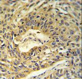 ATP5A1 / ATP Synthase Alpha Antibody - ATP5A1 Antibody IHC of formalin-fixed and paraffin-embedded lung carcinoma followed by peroxidase-conjugated secondary antibody and DAB staining.