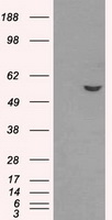 HEK293T cells were transfected with the pCMV6-ENTRY control (Left lane) or pCMV6-ENTRY ATP5B (Right lane) cDNA for 48 hrs and lysed. Equivalent amounts of cell lysates (5 ug per lane) were separated by SDS-PAGE and immunoblotted with anti-ATP5B.