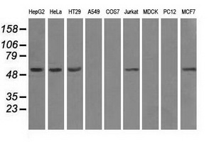 Western blot analysis of extracts (35ug) from 9 different cell lines by using anti-ATP5B monoclonal antibody.