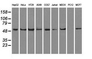 Western blot of extracts (35 ug) from 9 different cell lines by using anti-ATP5B monoclonal antibody.