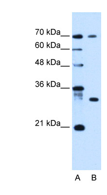 ATP6AP1L antibody LS-C40496 Western blot of HepG2 cell lysate.  This image was taken for the unconjugated form of this product. Other forms have not been tested.