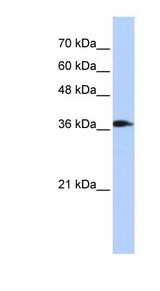 ATP6V0D2 antibody Western blot of Transfected 293T cell lysate. This image was taken for the unconjugated form of this product. Other forms have not been tested.