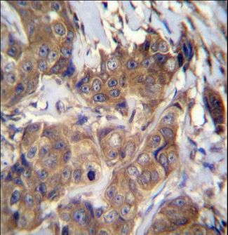 ATP6V1B1 Antibody - ATP6V1B1 Antibody immunohistochemistry of formalin-fixed and paraffin-embedded human breast carcinoma followed by peroxidase-conjugated secondary antibody and DAB staining.