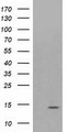 HEK293T cells were transfected with the pCMV6-ENTRY control (Left lane) or pCMV6-ENTRY ATP6V1F (Right lane) cDNA for 48 hrs and lysed. Equivalent amounts of cell lysates (5 ug per lane) were separated by SDS-PAGE and immunoblotted with anti-ATP6V1F.