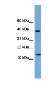 ATP6V1G2 antibody LS-C135464 Western blot of Fetal Brain lysate.  This image was taken for the unconjugated form of this product. Other forms have not been tested.