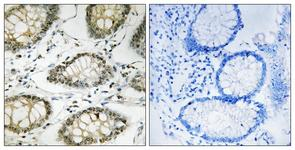 IHC of paraffin-embedded human colon carcinoma, using ATR (Phospho-Ser428) Antibody. The sample on the right was incubated with synthetic peptide.