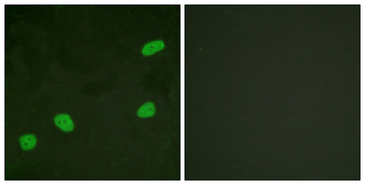 Immunofluorescence analysis of HeLa cells, using ATRIP Antibody. The picture on the right is blocked with the synthesized peptide.