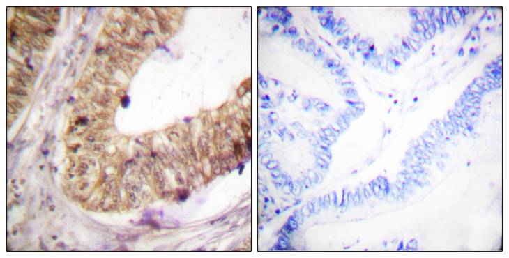 ATRIP Antibody - Immunohistochemistry analysis of paraffin-embedded human colon carcinoma tissue, using ATRIP Antibody. The picture on the right is blocked with the synthesized peptide.