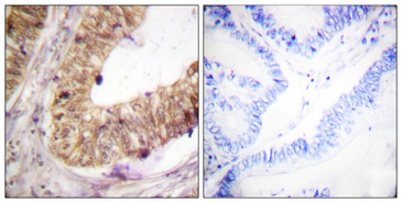 Immunohistochemistry analysis of paraffin-embedded human colon carcinoma tissue, using ATRIP Antibody. The picture on the right is blocked with the synthesized peptide.