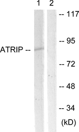 Western blot analysis of lysates from NIH/3T3 cells, using ATRIP Antibody. The lane on the right is blocked with the synthesized peptide.
