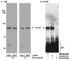 WB and IP: ATRIP Antibody - Whole cell lysate from HeLa and 293-T cells. ATRIP was also IPed using a control antibody generated to recombinant human ATRIP. IPed ATRIP was detected using the antibody to the recombinant protein.  This image was taken for the unconjugated form of this product. Other forms have not been tested.