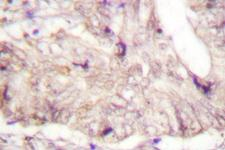ATRIP Antibody - IHC of ATRIP (D64) pAb in paraffin-embedded human lung colon carcinoma tissue.