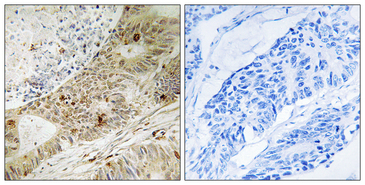 Immunohistochemistry analysis of paraffin-embedded human colon carcinoma, using ATRIP (Phospho-Ser224) Antibody. The picture on the right is blocked with the phospho peptide.