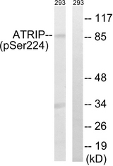 Western blot analysis of lysates from 293 cells treated with UV 15', using ATRIP (Phospho-Ser224) Antibody. The lane on the right is blocked with the phospho peptide.