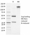 SDS-PAGE Analysis of Purified, BSA-Free ATRX Antibody (clone 39f). Confirmation of Integrity and Purity of the Antibody.