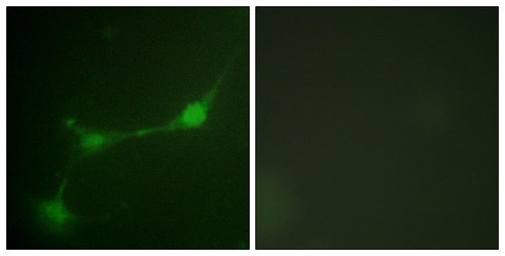 ATXN1 / SCA1 Antibody - Immunofluorescence analysis of NIH/3T3 cells, using Ataxin 1 (Phospho-Ser776) Antibody. The picture on the right is blocked with the phospho peptide.