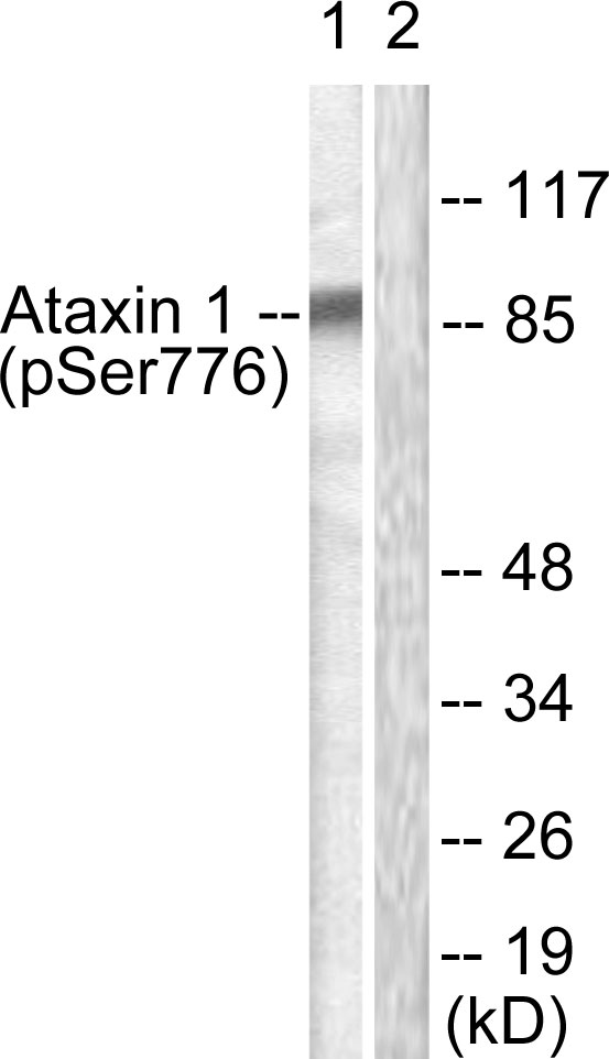 ATXN1 / SCA1 Antibody - Western blot analysis of lysates from HepG2 cells treated with Adriamycin 0.5uM 5h, using Ataxin 1 (Phospho-Ser776) Antibody. The lane on the right is blocked with the phospho peptide.