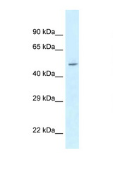 ATXN10 / Ataxin-10 antibody Western blot of 293T Cell lysate. Antibody concentration 1 ug/ml.  This image was taken for the unconjugated form of this product. Other forms have not been tested.