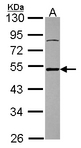 Sample (30 ug of whole cell lysate). A: U87-MG. 10% SDS PAGE. ATXN3 / JOS antibody diluted at 1:1000.