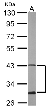 Sample (50 ug of whole cell lysate). A: mouse brain. 10% SDS PAGE. ATXN3 / JOS antibody diluted at 1:500.