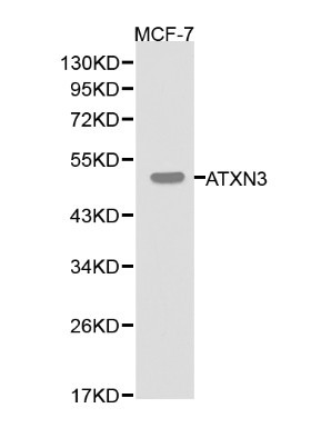 Western blot of ATXN3 pAb in extracts from MCF-7 cells.