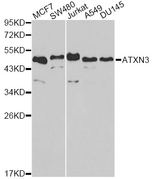 Western blot analysis of extracts of various cell lines, using ATXN3 antibody at 1:1000 dilution. The secondary antibody used was an HRP Goat Anti-Rabbit IgG (H+L) at 1:10000 dilution. Lysates were loaded 25ug per lane and 3% nonfat dry milk in TBST was used for blocking.