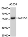 Western blot analysis of extracts of A2058 cells.
