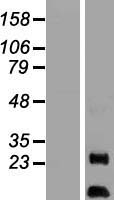 AURKAIP1 / AKIP Protein - Western validation with an anti-DDK antibody * L: Control HEK293 lysate R: Over-expression lysate