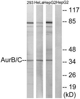 Aurora Kinase B+C Antibody - Western blot analysis of lysates from 293, HeLa, and fHepG2 cells, treated with Paclitaxel 1uM 24h, using AurB/C Antibody. The lane on the right is blocked with the synthesized peptide.
