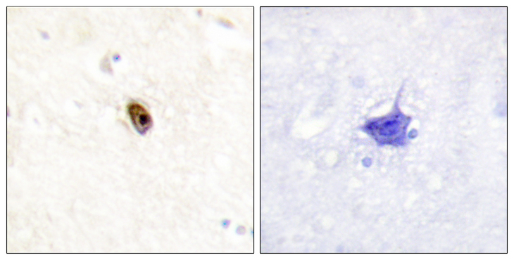 Aurora Kinase B+C Antibody - Immunohistochemistry analysis of paraffin-embedded human brain, using AurB/C (Phospho-Thr236/202) Antibody. The picture on the right is blocked with the phospho peptide.