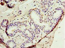 AUTL1 / ATG4C Antibody - Immunohistochemistry of paraffin-embedded human breast cancer using antibody at 1:100 dilution.
