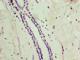 Immunohistochemistry of paraffin-embedded human breast cancer using ATG4C Antibody at dilution of 1:100