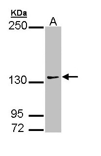 AUTS2 Antibody - Sample (30 ug of whole cell lysate). A: 293T. 7.5% SDS PAGE. AUTS2 antibody diluted at 1:1000