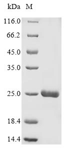 Endochitinase Protein - (Tris-Glycine gel) Discontinuous SDS-PAGE (reduced) with 5% enrichment gel and 15% separation gel.