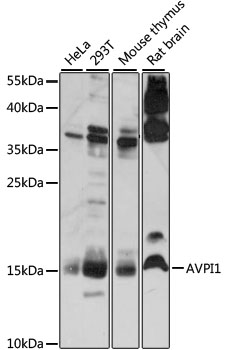 AVPI1 Antibody - Western blot analysis of extracts of various cell lines, using AVPI1 antibody at 1:1000 dilution. The secondary antibody used was an HRP Goat Anti-Rabbit IgG (H+L) at 1:10000 dilution. Lysates were loaded 25ug per lane and 3% nonfat dry milk in TBST was used for blocking. An ECL Kit was used for detection and the exposure time was 30s.