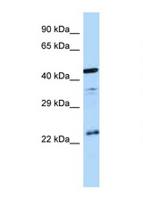 AVPR1B antibody Western blot of Fetal Brain lysate. Antibody concentration 1 ug/ml.  This image was taken for the unconjugated form of this product. Other forms have not been tested.