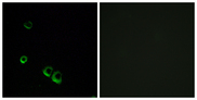 Immunofluorescence analysis of MCF7 cells, using AVPR2 Antibody. The picture on the right is blocked with the synthesized peptide.