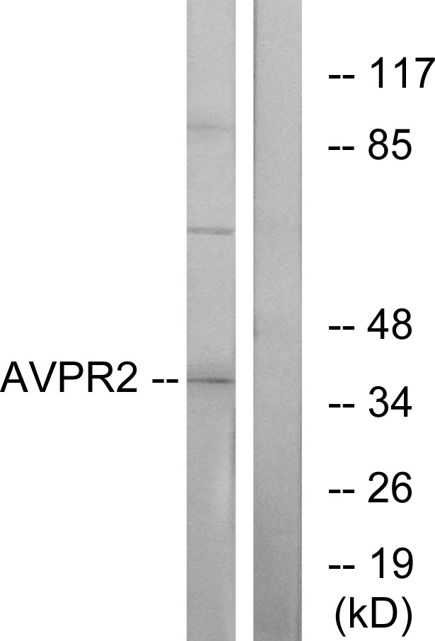 AVPR2 / V2R Antibody - Western blot analysis of lysates from RAW264.7 cells, using AVPR2 Antibody. The lane on the right is blocked with the synthesized peptide.