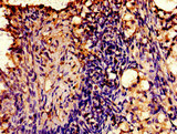 Immunohistochemistry image of paraffin-embedded human ovarian cancer at a dilution of 1:100