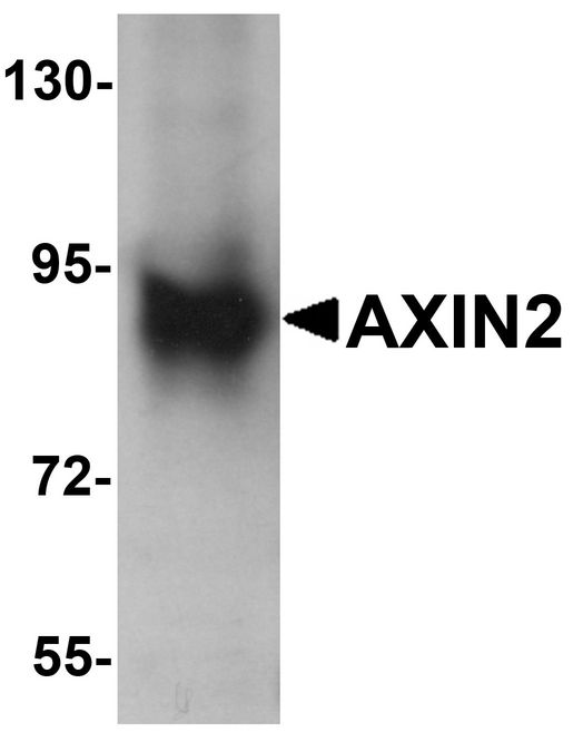 Western blot analysis of AXIN2 in mouse lung lysate with AXIN2 antibody at 1 ug/ml.