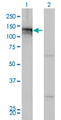 Western Blot analysis of AXL expression in transfected 293T cell line by AXL monoclonal antibody (M01), clone 6C8.Lane 1: AXL transfected lysate(98 KDa).Lane 2: Non-transfected lysate.