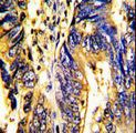 Formalin-fixed and paraffin-embedded human colon carcinoma with AXL Antibody, which was peroxidase-conjugated to the secondary antibody, followed by DAB staining. This data demonstrates the use of this antibody for immunohistochemistry; clinical relevance has not been evaluated.