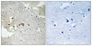 Immunohistochemistry analysis of paraffin-embedded human brain, using AXL (Phospho-Tyr691) Antibody. The picture on the right is blocked with the phospho peptide.
