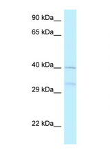 AZI2 / NAP1 antibody Western blot of 721_B Cell lysate. Antibody concentration 1 ug/ml.  This image was taken for the unconjugated form of this product. Other forms have not been tested.