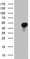 AZIN1 Antibody - HEK293T cells were transfected with the pCMV6-ENTRY control. (Left lane) or pCMV6-ENTRY AZIN1. (Right lane) cDNA for 48 hrs and lysed