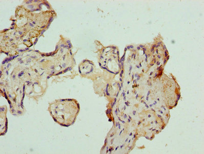 Immunohistochemistry of paraffin-embedded human placenta tissue using AZIN1 Antibody at dilution of 1:100