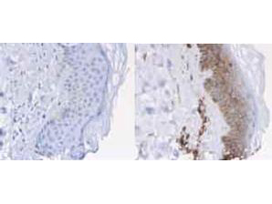 B2M / Beta 2 Microglobulin Antibody - Immunohistochemistry of rabbit anti-Beta-2-Microglobulin Antibody. Tissue: normal human skin. Fixation: formalin fixed paraffin embedded. Antigen retrieval: not required. Primary antibody: Left panel: isotype control, Right panel: ß2 microglobulin antibody at 1 ug/ml for 20 min at RT. Secondary antibody: Peroxidase rabbit secondary antibody at 1:10,000 for 45 min at RT. Localization: ß2 microglobulin is cell membrane (and to lesser amount cytoplasmatic compartment). Staining: Beta-2-Microglobulin as brown with diaminobenzidine and with a hematoxylin purple counterstain.